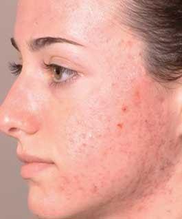 La Cure, Acne Treatment. www.brendasjordan.com