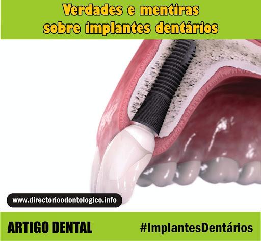 implante-dentario