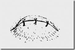 sutura occhio