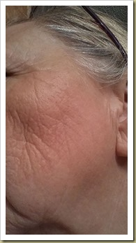 Face before using Face Life with Activator - Thoughts in Progress