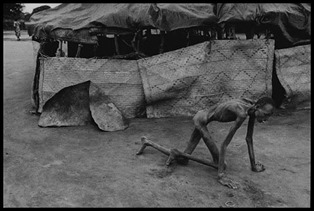 Sudan, 1993 - Famine victim in a feeding center Witness