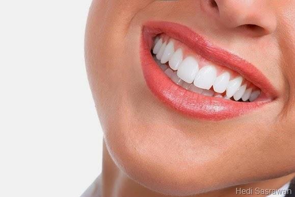 15 Cara Memutihkan Gigi Kuning Secara Alami Dengan Cepat Dan Mudah