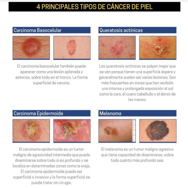 Sabes cuándo sospechar un cáncer de piel? Signos y síntomas para la ...