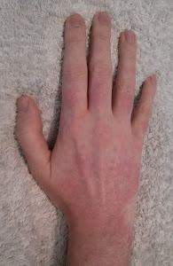 Skin GVHD - Hand After Shower