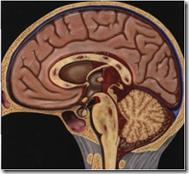 MRI PADA OTAK