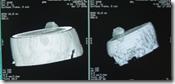 pemeriksaan radiology kepala