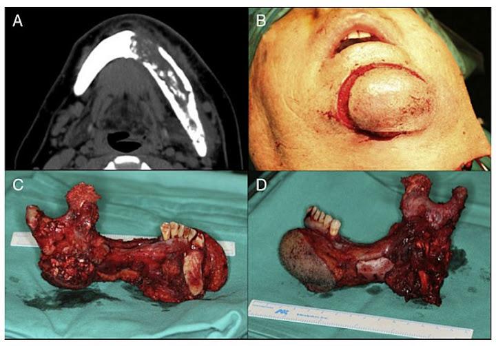 carcinoma-odontogenico
