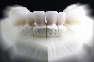 5 Cara Menjaga Kesehatan Gigi
