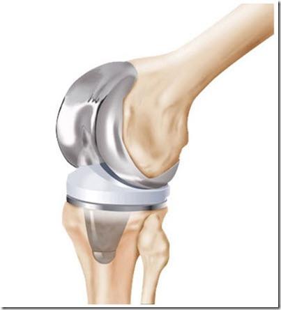 zimmer-nexgen-knee-mis-system-399-x-441