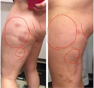 Image result for Fascia