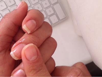 ongles cassants, ongle cassant, ongles qui se dedoublent, astuces pour ongles cassant, produit pour ongles cassants, ikarov, nail strengthening oil, huiles essentielle, huile essentielle citrus, huille essentielle, prunus, eucalyptus, tocopherol, ongles solides, ongles durs, astuces pour avoir les ongles durs, mesarticlesdujour, conseil beaute, ebay, ou trouver ikarov