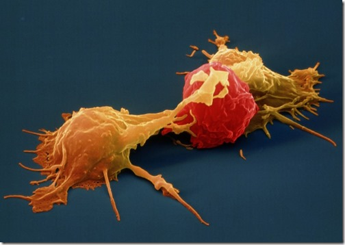 NK cell attacking a cancer cell