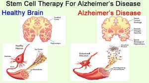 Health Tips: Alzheimer's diseases and its symptoms: alzheimer's disease and its cause