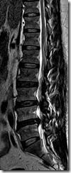 MRI LUMBAR IMAGES