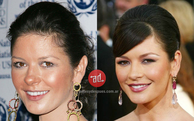 Catherine Zeta Jones con acné