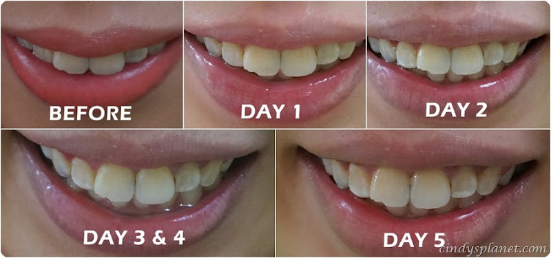 opalescence teeth whitening review