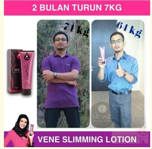 testimoni vene slimming lotion