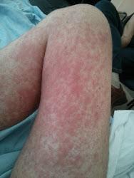 Skin GVHD - Leg