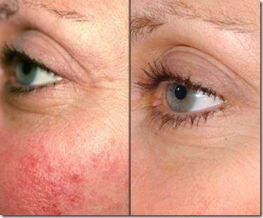 Wrinkles Scars Rosy Cheeks and the Benefits of Laser Genesis
