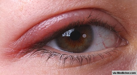 blepharitis-eye-stye-1408691349-111faedf