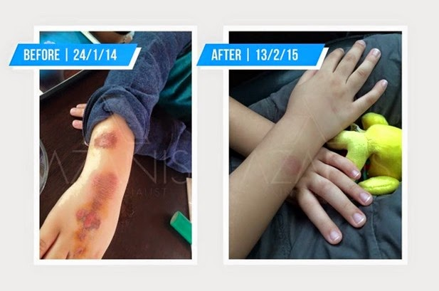 azanis scar serum testimoni