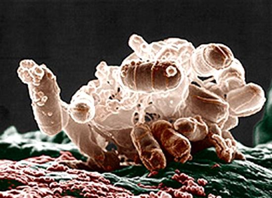 Escherichia coli batterio umano ceppo patogeno O157.H7