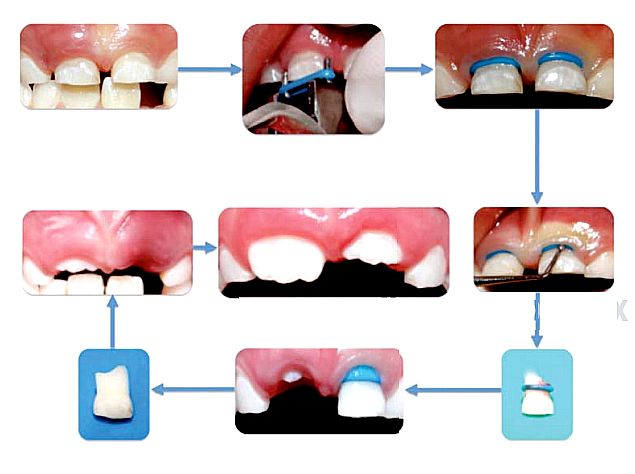 extraccion-dental-atraumatica