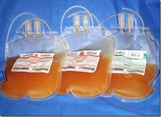 Sacche-plasma