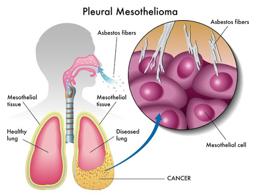 Lawyers, attorneys, Law firm for consulting about mesothelioma compensation