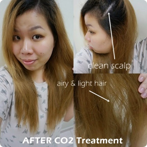 Daisuke Salon co2 scalp hair Review1