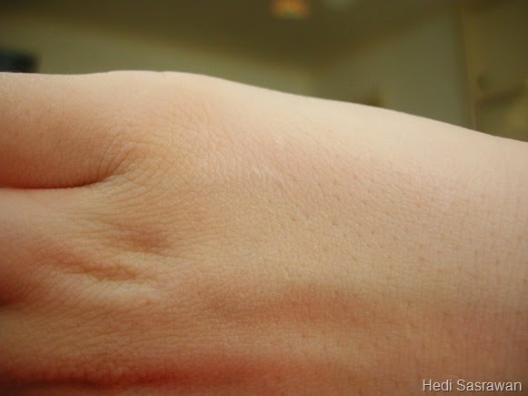 fungsi kulit manusia