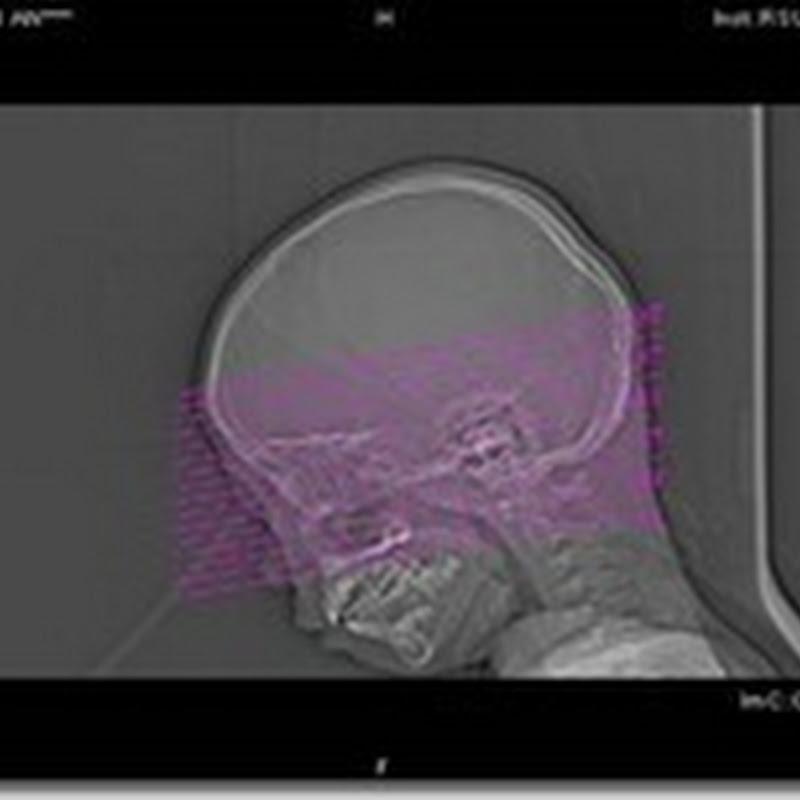 Hasil pembahasan teknik pemeriksaan radiology ct scan pada kasus