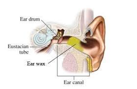 Ear wax impaction, Ear cerumen impaction