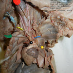 fetal_pig_heart_vessels_labeled.jpg