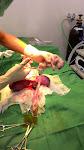 剪斷臍帶交給助手