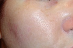 Other cheek Before using EverClear VC Vitamin C Serum