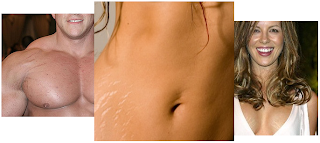 La Cure, Stretch Marks Treatment. www.brendasjordan.com