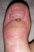Big Toenail Removal - Right Foot - 16 Weeks & 4 Days