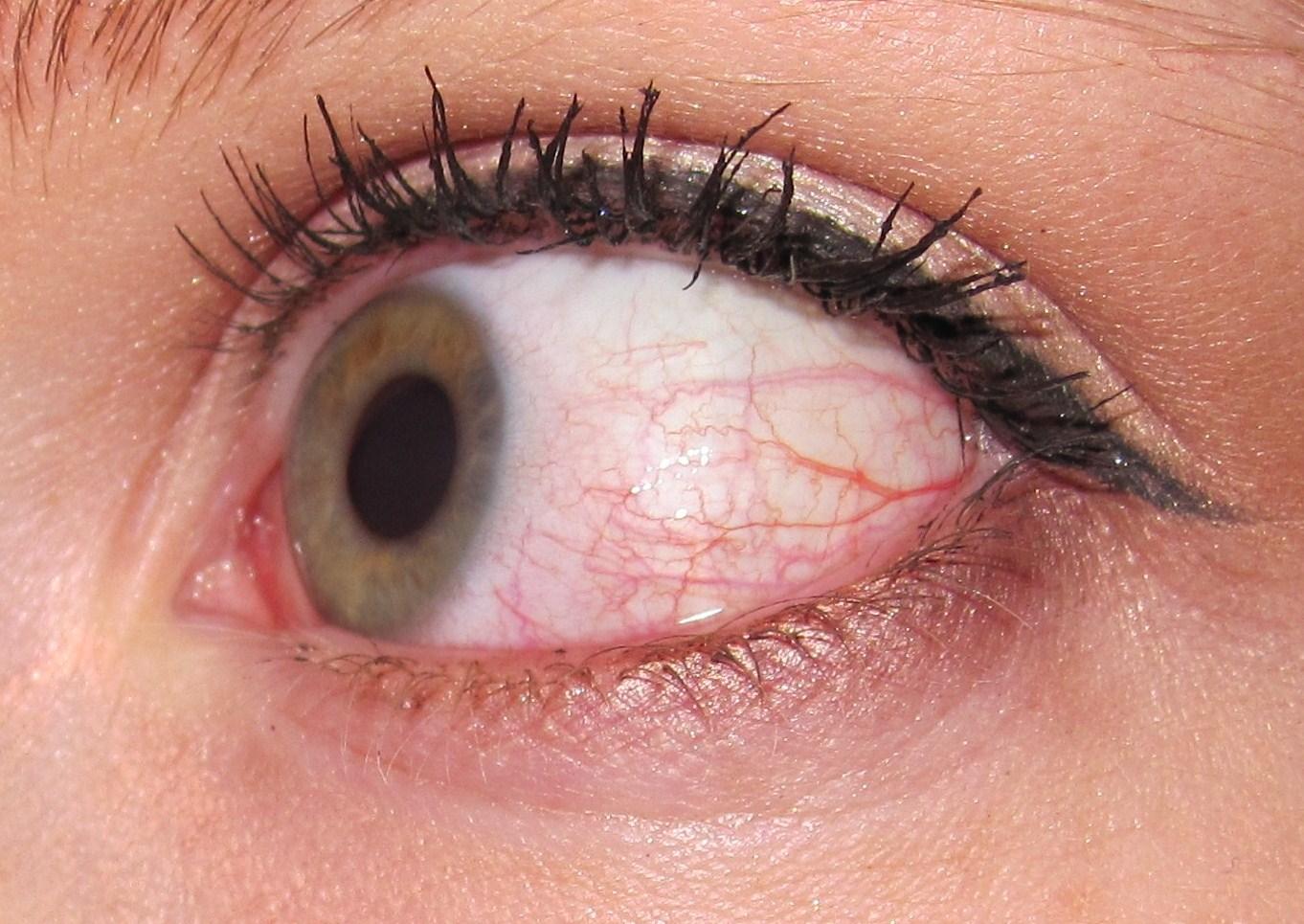 Что делать если глаза покраснели от косметики