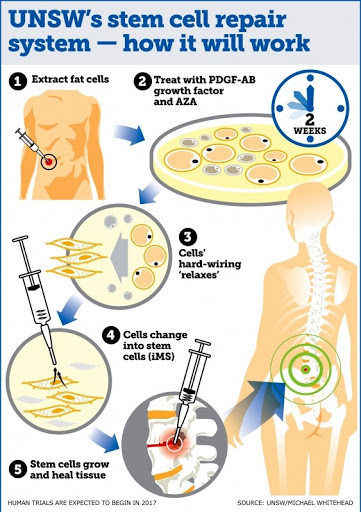 New stem cell treatment using fat cells could repair any tissue in the body