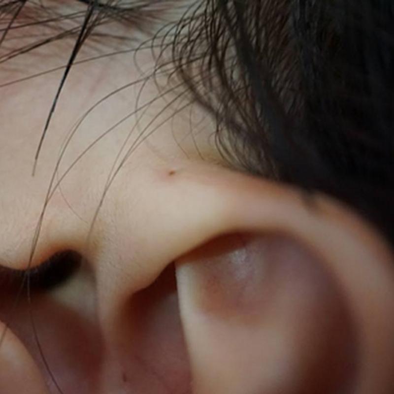 Sinus telinga rupanya !