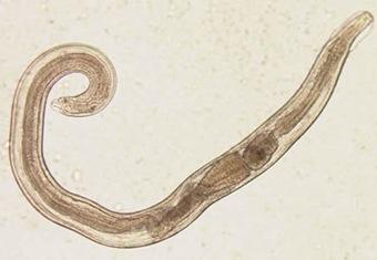 enterobius vermicularis verme nell'uomo