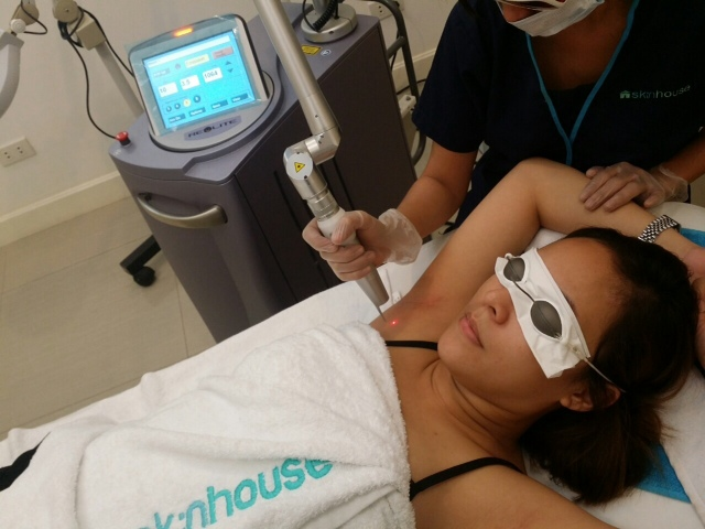 Revlite Laser Treatment at Skin House