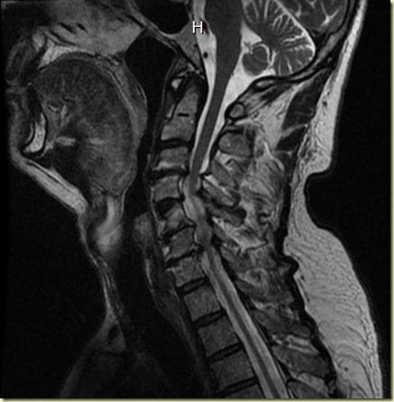 Neck MRI copy