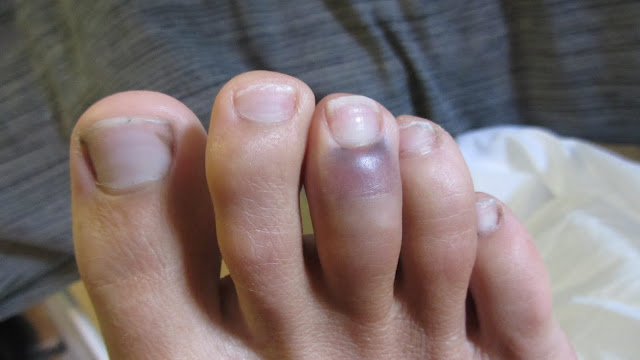 Erik's stubbed toe, turning black and blue.
