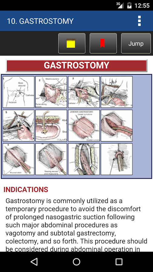 Zollinger's Atlas of Surgery Screenshot 3