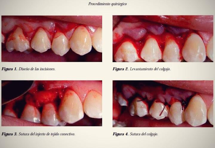 recesiones-periodontales