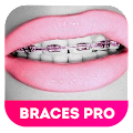 Braces Teeth Booth 2.0 APK for Blackberry