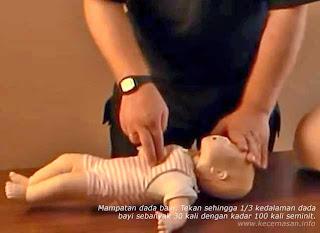 Mampatan dada bayi. Tekan sehingga 1/3 kedalaman dada bayi sebanyak 30 kali dengan kadar 100 kali seminit.