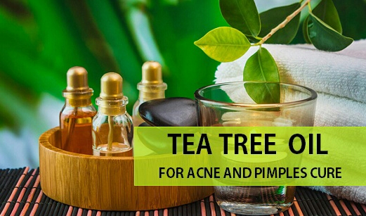Tea Tree Oil for Acne